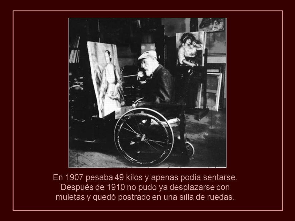 Izquierda: Renoir en 1915, la imagen muestra la caquexia reumatoide. A la derecha podemos ver la delgadez de su rostro a través del