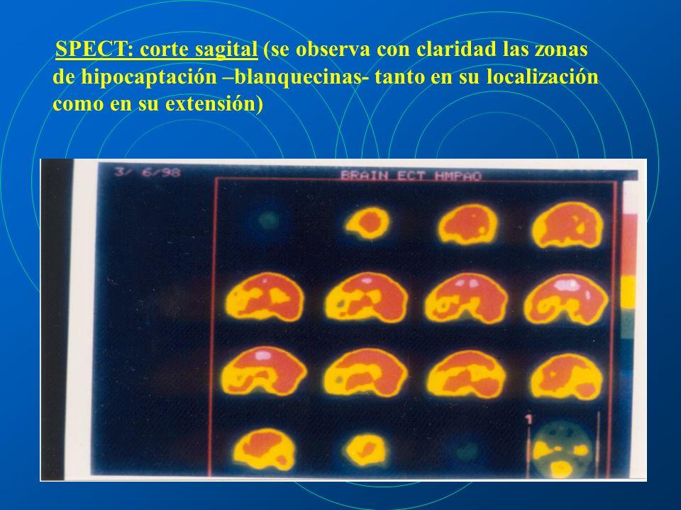 SPECT: corte sagital (se observa con claridad las zonas de hipocaptación –blanquecinas- tanto en su localización como en su extensión)