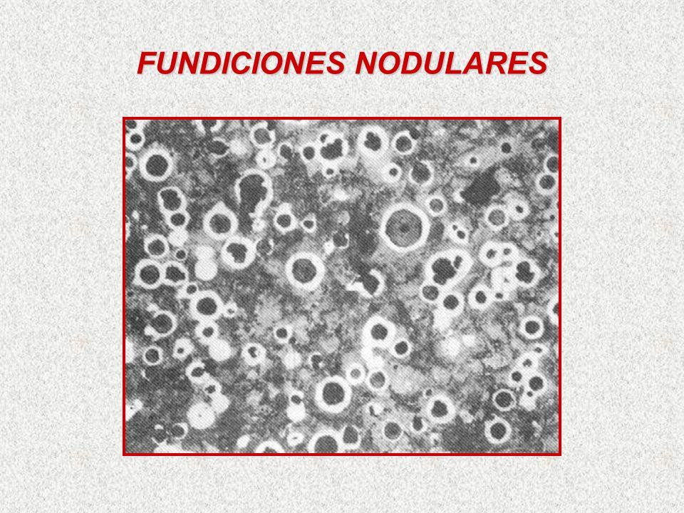 FUNDICIONES NODULARES