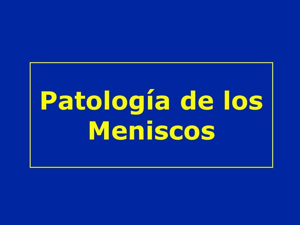 Patología de los Meniscos
