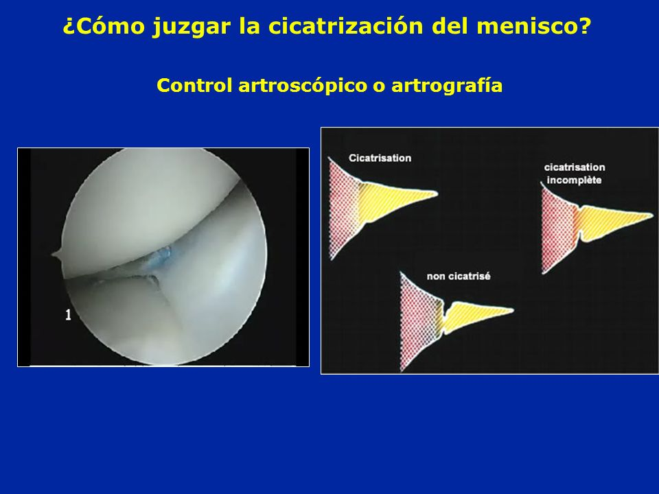 Control artroscópico o artrografía ¿Cómo juzgar la cicatrización del menisco?