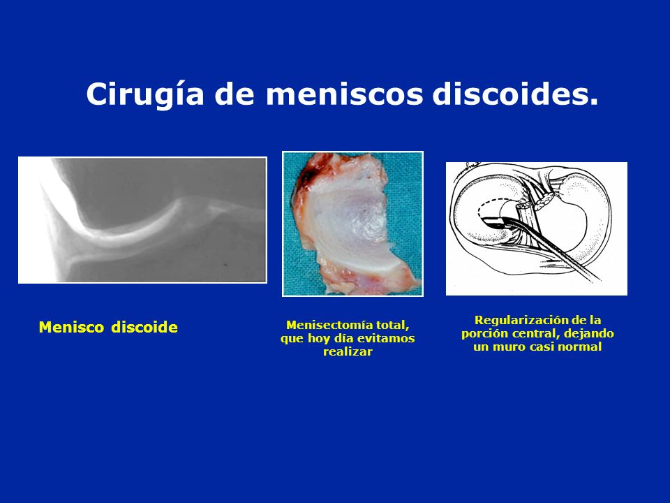 Cirugía de meniscos discoides. Menisco discoide Regularización de la porción central, dejando un muro casi normal Menisectomía total, que hoy día evit