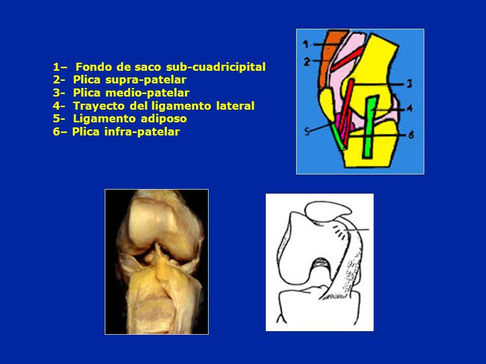1– Fondo de saco sub-cuadricipital 2- Plica supra-patelar 3- Plica medio-patelar 4- Trayecto del ligamento lateral 5- Ligamento adiposo 6– Plica infra