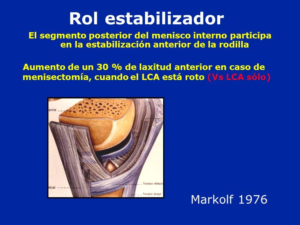 El segmento posterior del menisco interno participa en la estabilización anterior de la rodilla Rol estabilizador Aumento de un 30 % de laxitud anteri