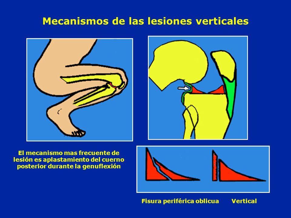 Mecanismos de las lesiones verticales Fisura periférica oblicua Vertical El mecanismo mas frecuente de lesión es aplastamiento del cuerno posterior du