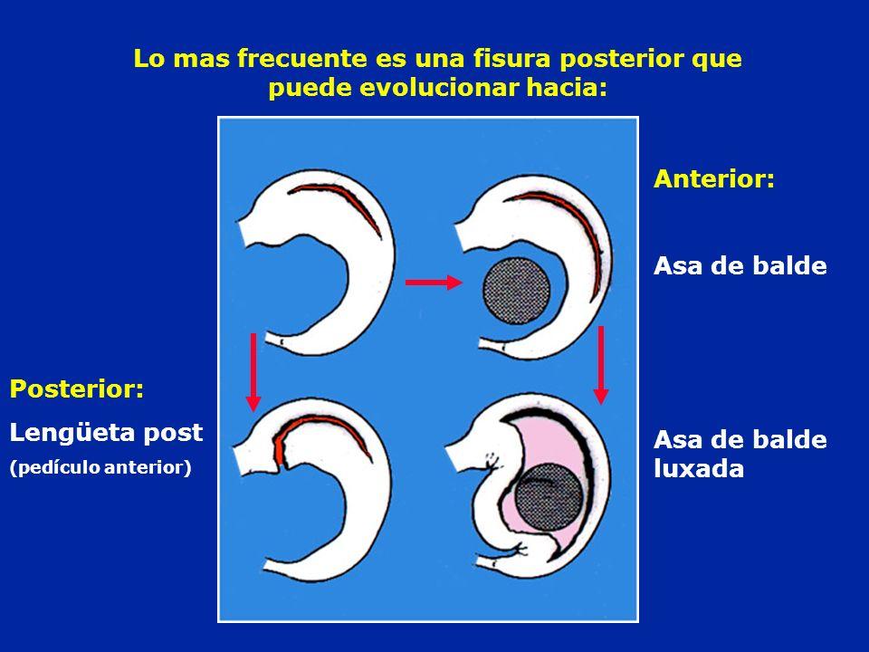 Lo mas frecuente es una fisura posterior que puede evolucionar hacia: Anterior: Asa de balde Asa de balde luxada Posterior: Lengüeta post (pedículo an
