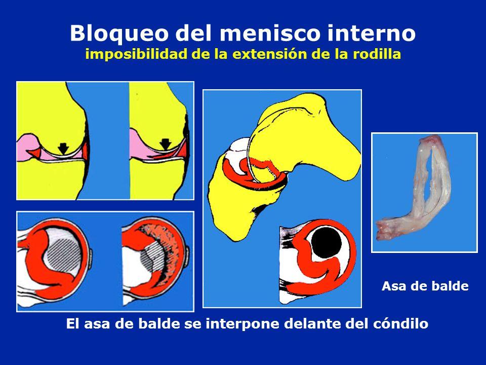 Bloqueo del menisco interno imposibilidad de la extensión de la rodilla Asa de balde El asa de balde se interpone delante del cóndilo