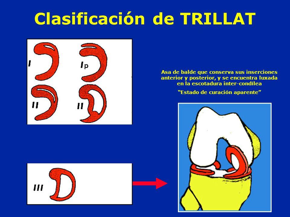 Clasificación de TRILLAT Asa de balde que conserva sus inserciones anterior y posterior, y se encuentra luxada en la escotadura inter-condílea Estado