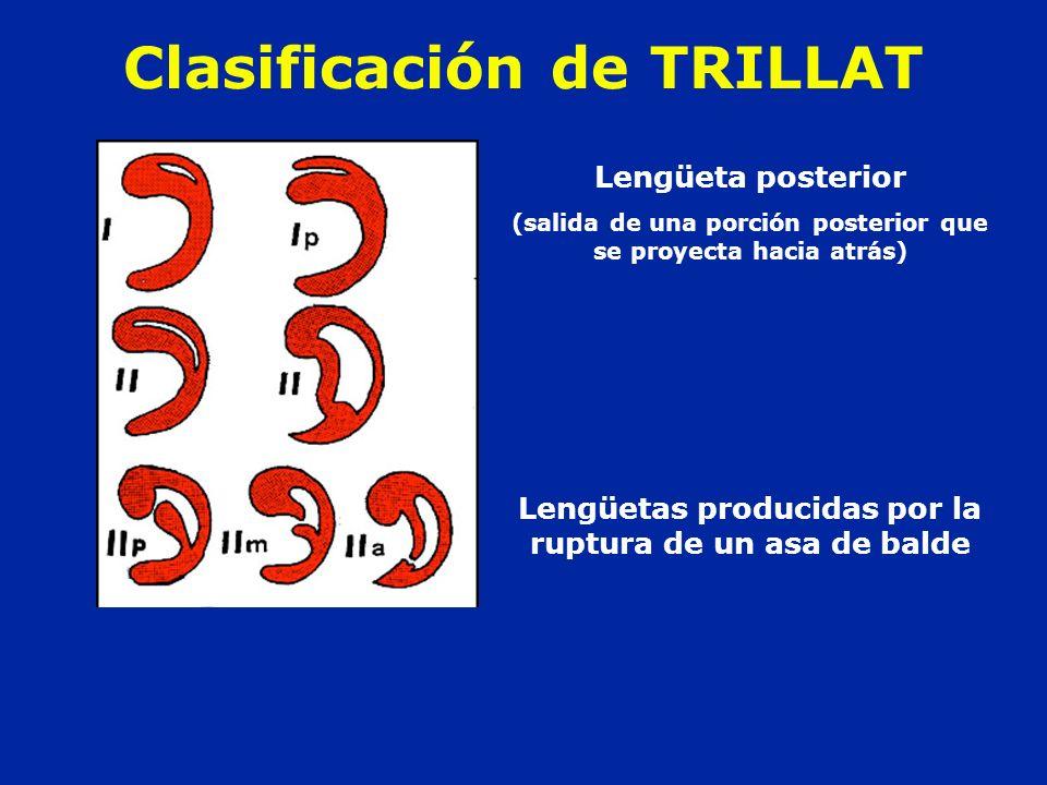 Clasificación de TRILLAT Lengüeta posterior (salida de una porción posterior que se proyecta hacia atrás) Lengüetas producidas por la ruptura de un as