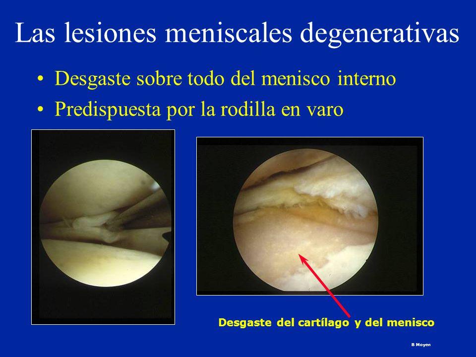 Las lesiones meniscales degenerativas Desgaste sobre todo del menisco interno Predispuesta por la rodilla en varo Desgaste del cartílago y del menisco