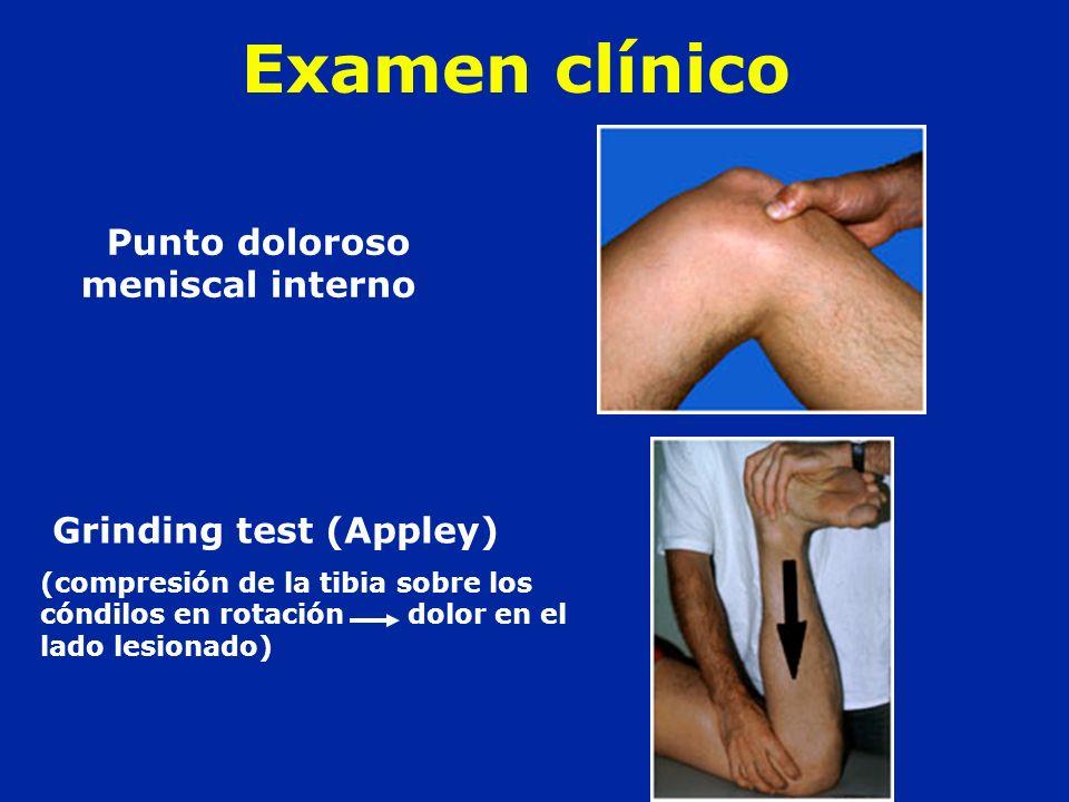 Examen clínico Punto doloroso meniscal interno Grinding test (Appley) (compresión de la tibia sobre los cóndilos en rotación dolor en el lado lesionad