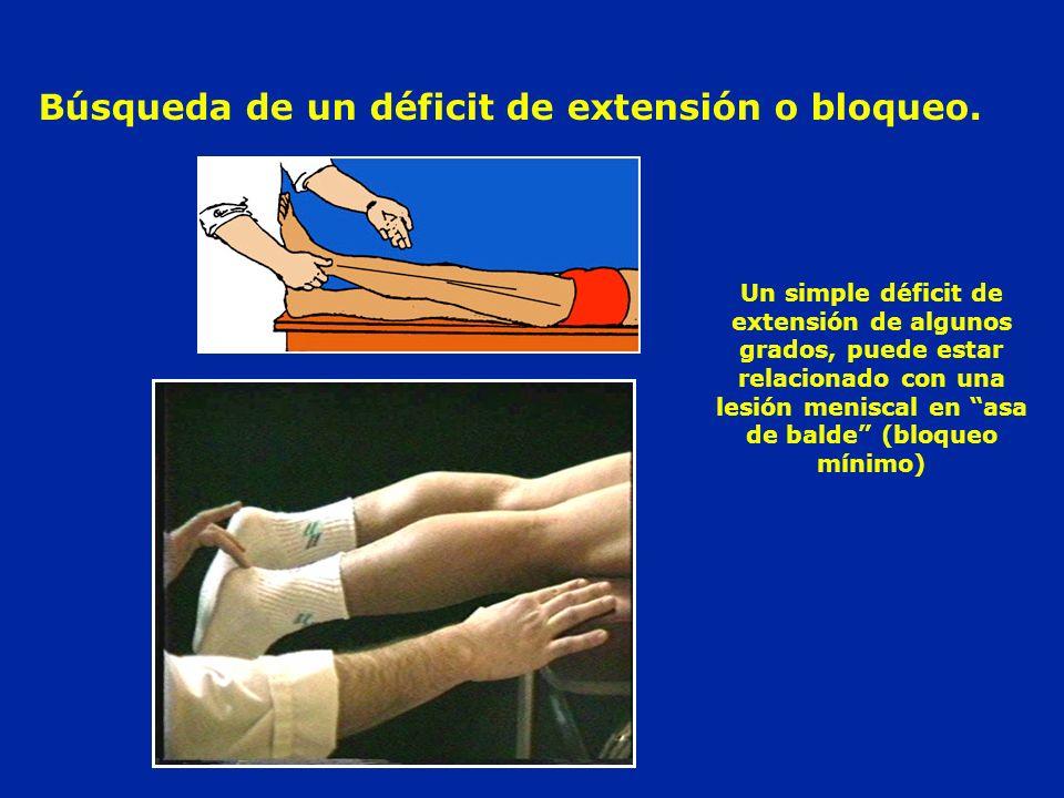 Búsqueda de un déficit de extensión o bloqueo. Un simple déficit de extensión de algunos grados, puede estar relacionado con una lesión meniscal en as