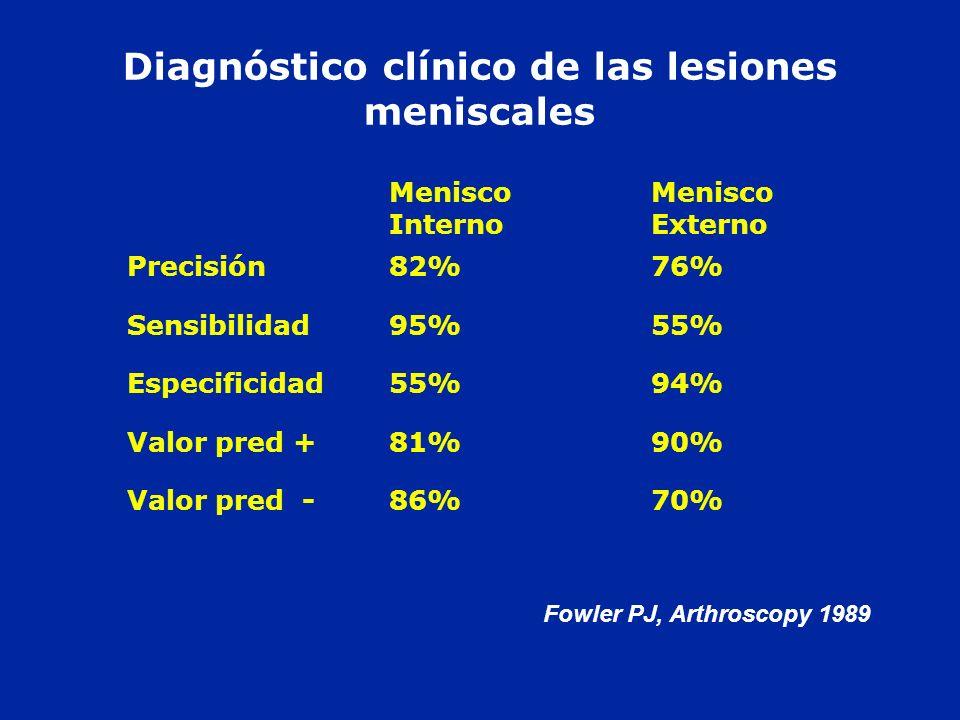 Diagnóstico clínico de las lesiones meniscales Fowler PJ, Arthroscopy 1989 Menisco Interno Menisco Externo Precisión82%76% Sensibilidad95%55% Especifi