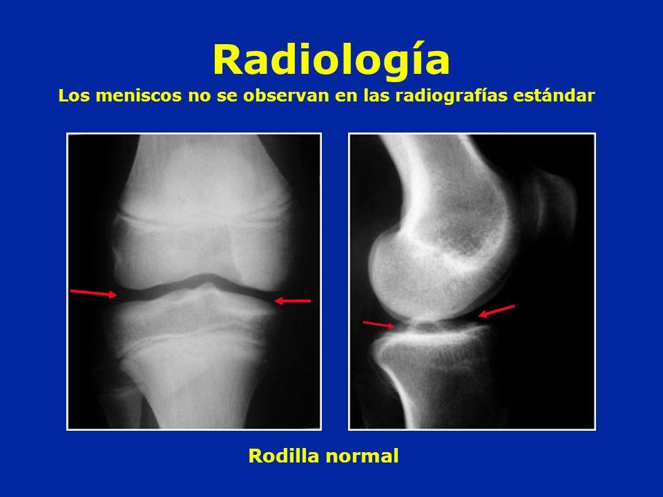 Radiología Rodilla normal Los meniscos no se observan en las radiografías estándar