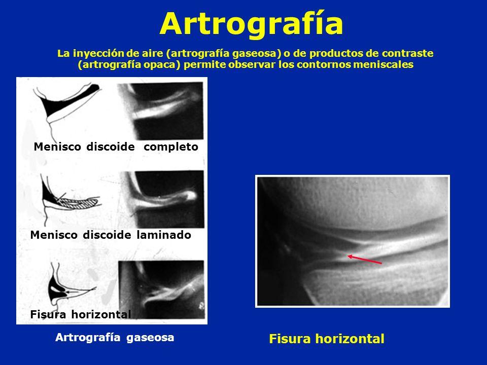 Artrografía Menisco discoide completo Fisura horizontal La inyección de aire (artrografía gaseosa) o de productos de contraste (artrografía opaca) per