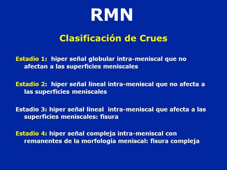 Clasificación de Crues Estadio 1: hiper señal globular intra-meniscal que no afectan a las superficies meniscales Estadio 2: hiper señal lineal intra-