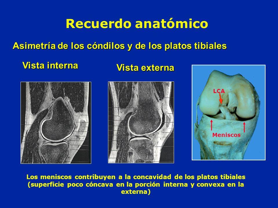 Asimetría de los cóndilos y de los platos tibiales Vista interna Vista externa Recuerdo anatómico Los meniscos contribuyen a la concavidad de los plat