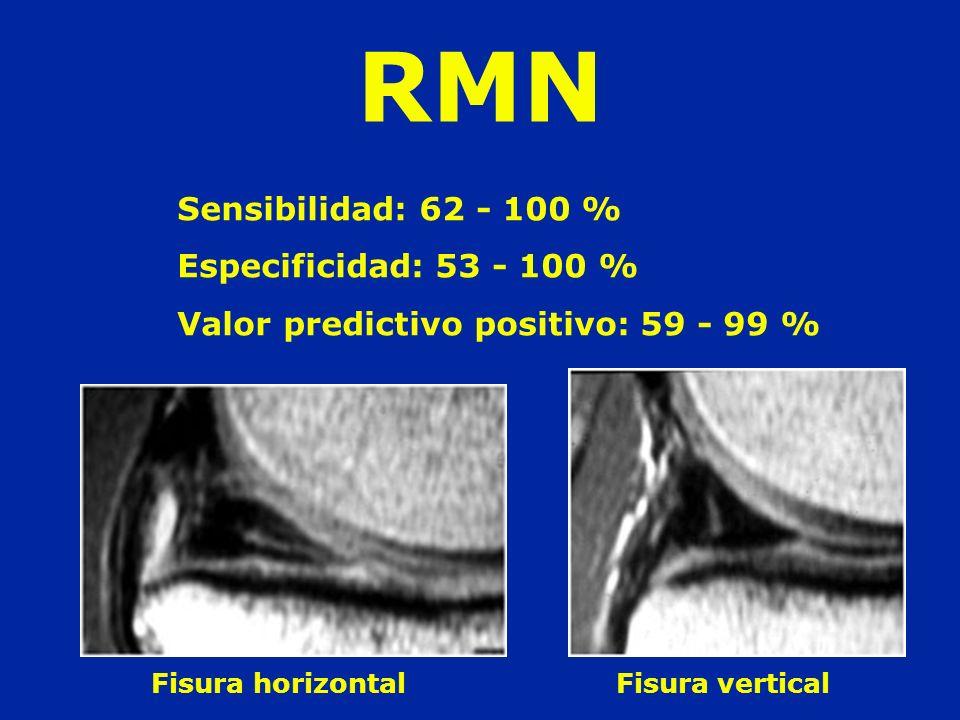 Sensibilidad: 62 - 100 % Especificidad: 53 - 100 % Valor predictivo positivo: 59 - 99 % Fisura horizontal Fisura vertical