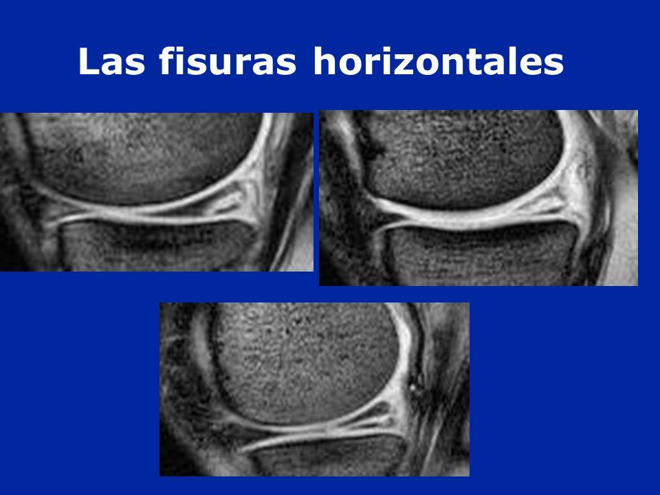Las fisuras horizontales