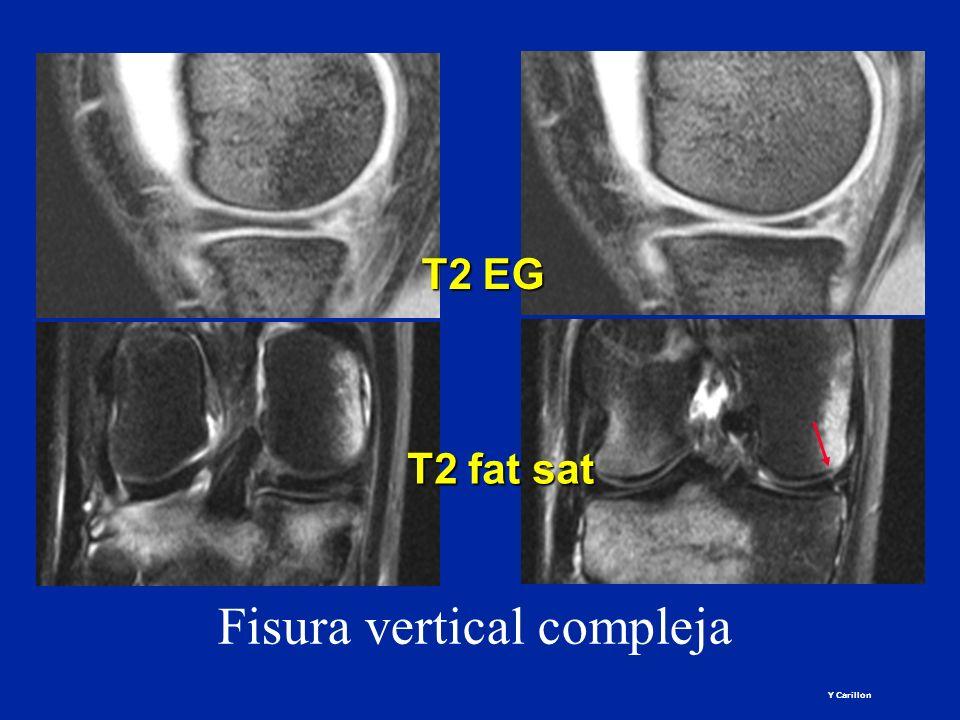 Fisura vertical compleja T2 EG T2 fat sat Y Carillon