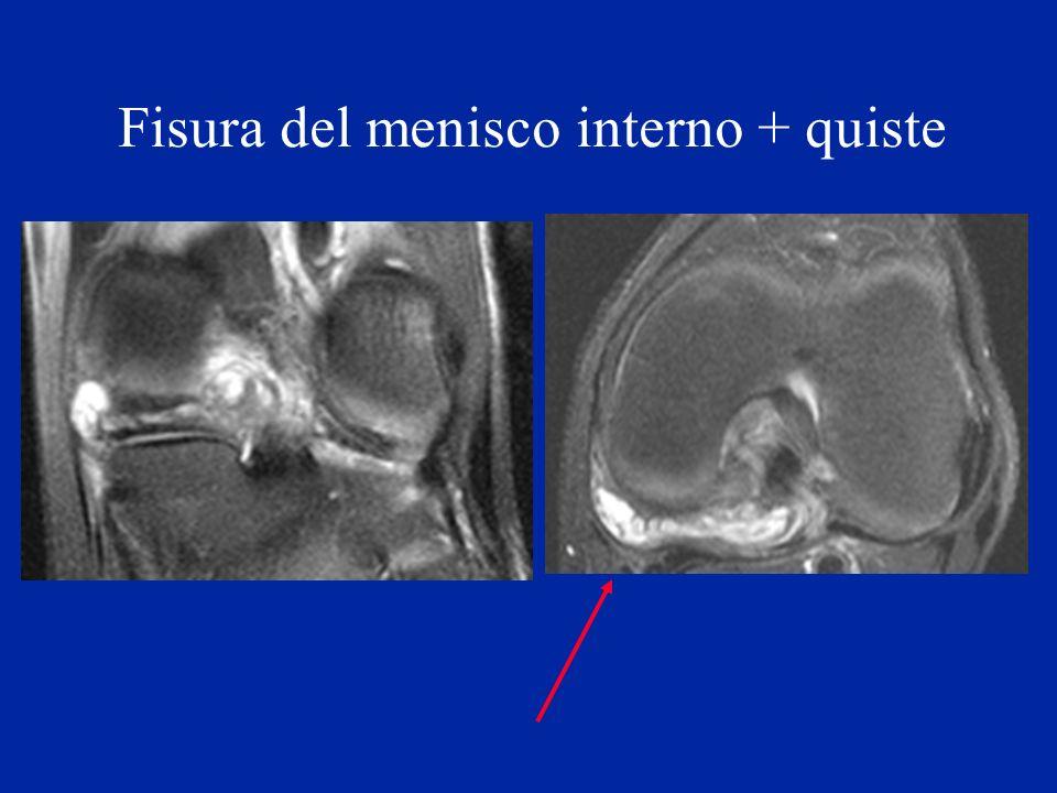 Fisura del menisco interno + quiste Echo de spin
