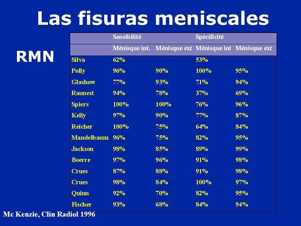Las fisuras meniscales Mc Kenzie, Clin Radiol 1996. RMN