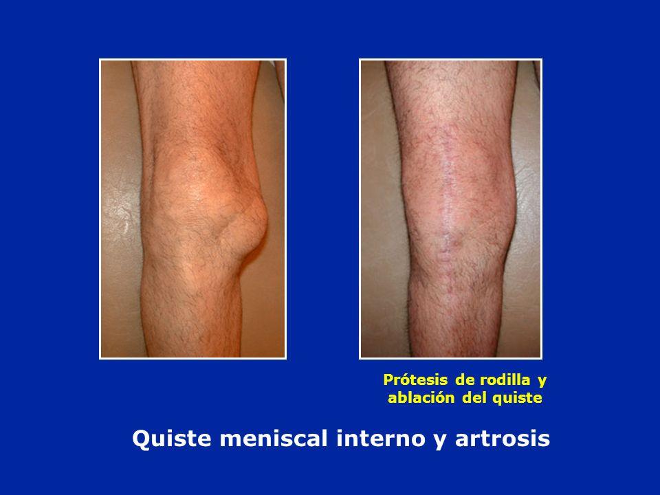 Quiste meniscal interno y artrosis Prótesis de rodilla y ablación del quiste