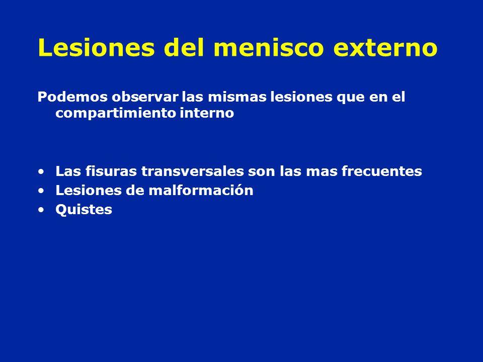 Lesiones del menisco externo Podemos observar las mismas lesiones que en el compartimiento interno Las fisuras transversales son las mas frecuentes Le