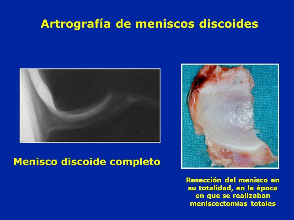 Artrografía de meniscos discoides Menisco discoide completo Resección del menisco en su totalidad, en la época en que se realizaban meniscectomías tot