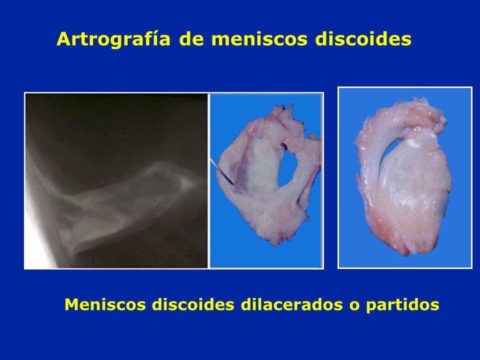 Artrografía de meniscos discoides Meniscos discoides dilacerados o partidos
