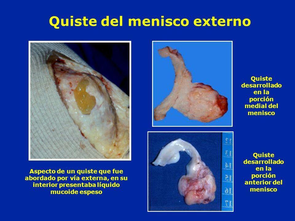 Aspecto de un quiste que fue abordado por vía externa, en su interior presentaba líquido mucoide espeso Quiste desarrollado en la porción medial del m