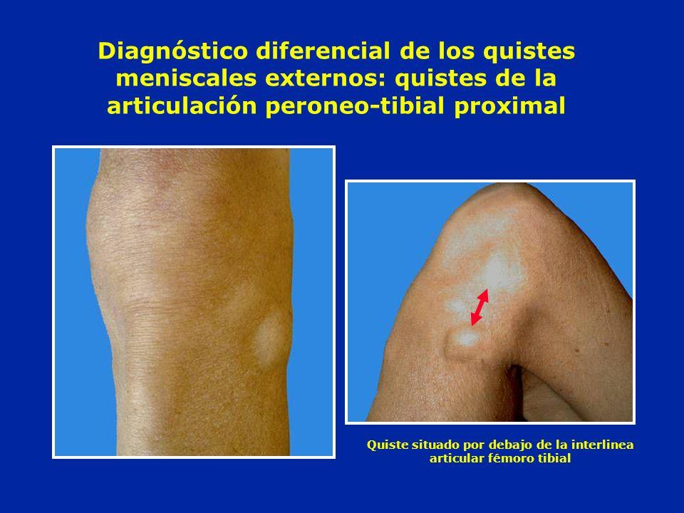 Diagnóstico diferencial de los quistes meniscales externos: quistes de la articulación peroneo-tibial proximal Quiste situado por debajo de la interli