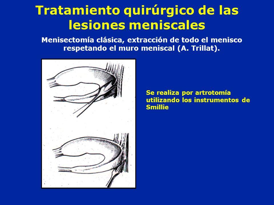 Tratamiento quirúrgico de las lesiones meniscales Menisectomía clásica, extracción de todo el menisco respetando el muro meniscal (A. Trillat). Se rea
