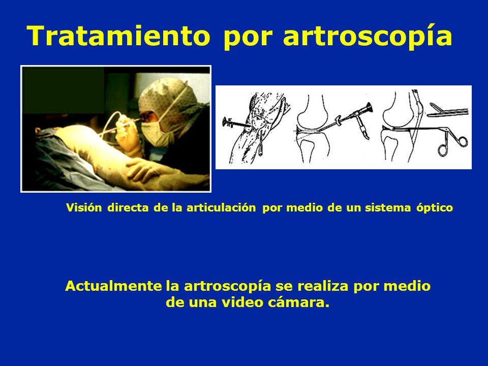 Tratamiento por artroscopía Actualmente la artroscopía se realiza por medio de una video cámara. Visión directa de la articulación por medio de un sis