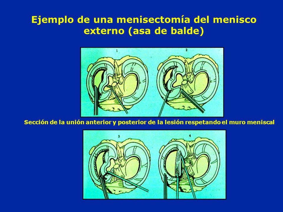 Ejemplo de una menisectomía del menisco externo (asa de balde) Sección de la unión anterior y posterior de la lesión respetando el muro meniscal
