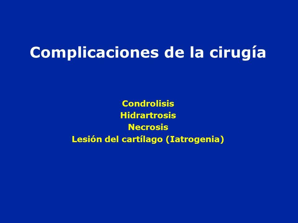 Complicaciones de la cirugía Condrolisis Hidrartrosis Necrosis Lesión del cartílago (Iatrogenia)