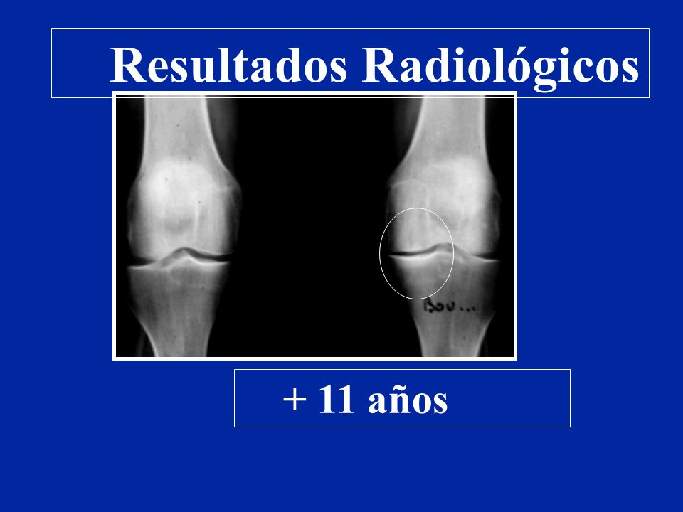 + 11 años Resultados Radiológicos