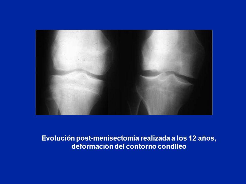 Evolución post-menisectomía realizada a los 12 años, deformación del contorno condíleo
