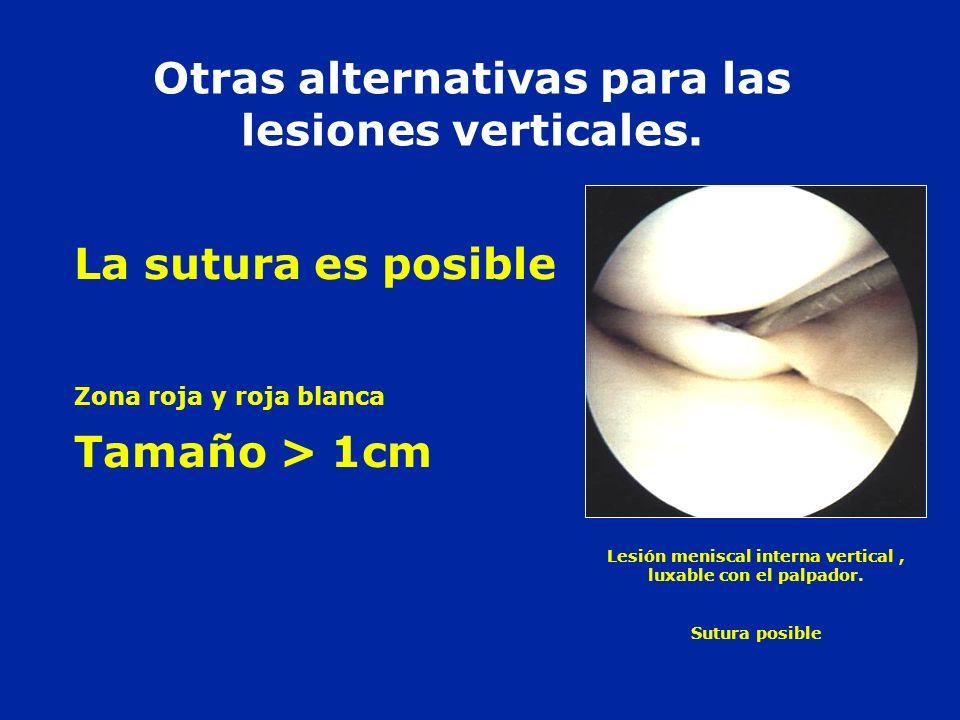 Otras alternativas para las lesiones verticales. La sutura es posible Zona roja y roja blanca Tamaño > 1cm Lesión meniscal interna vertical, luxable c
