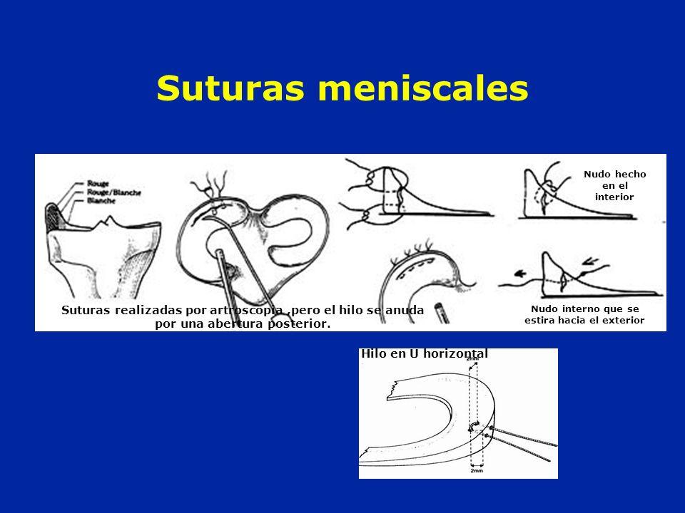 Suturas realizadas por artroscopia,pero el hilo se anuda por una abertura posterior. Nudo hecho en el interior Nudo interno que se estira hacia el ext