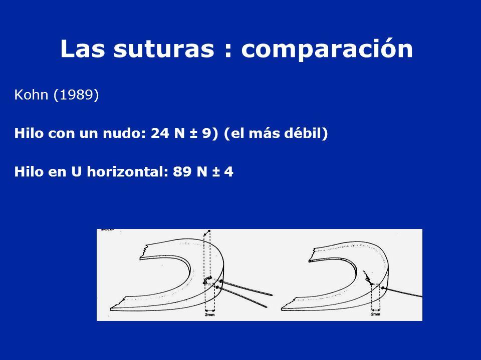 Las suturas : comparación Kohn (1989) Hilo con un nudo: 24 N ± 9) (el más débil) Hilo en U horizontal: 89 N ± 4