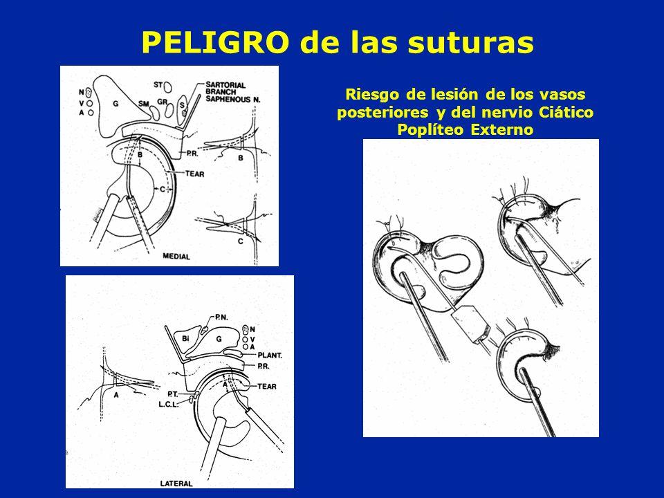 PELIGRO de las suturas Riesgo de lesión de los vasos posteriores y del nervio Ciático Poplíteo Externo