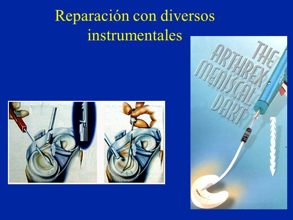 Reparación con diversos instrumentales