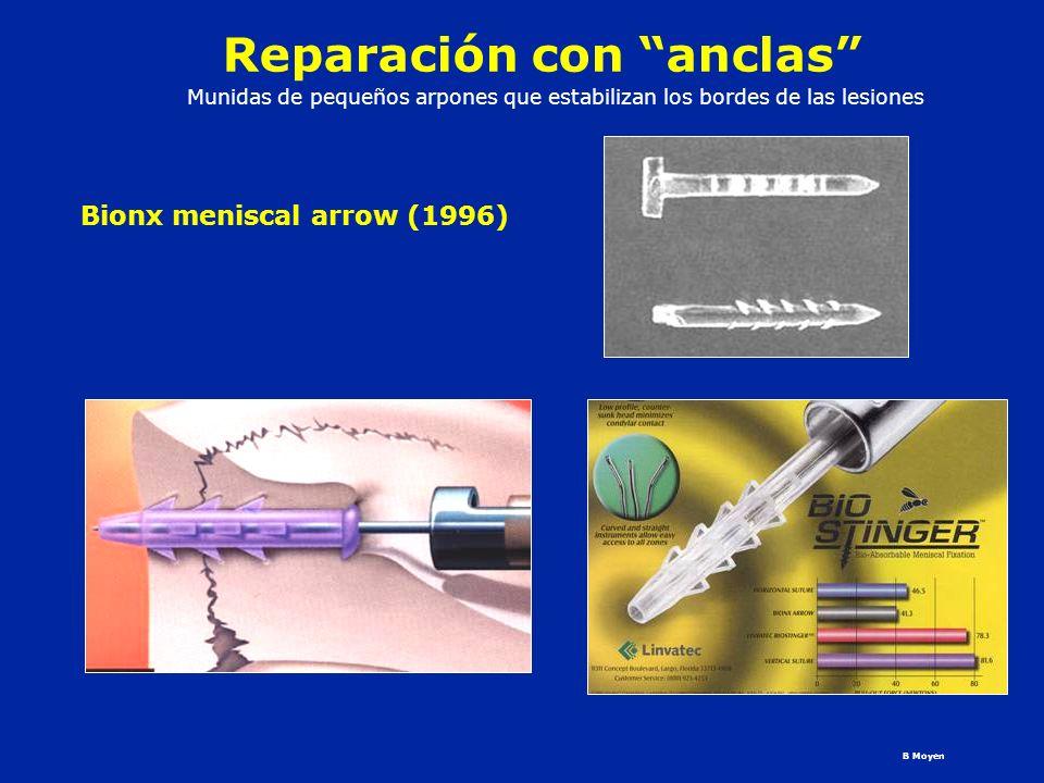 Reparación con anclas Bionx meniscal arrow (1996) B Moyen Munidas de pequeños arpones que estabilizan los bordes de las lesiones