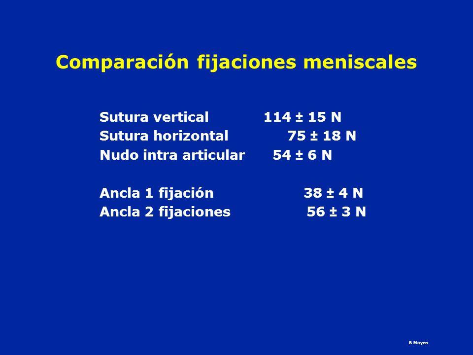 Comparación fijaciones meniscales Sutura vertical 114 ± 15 N Sutura horizontal 75 ± 18 N Nudo intra articular 54 ± 6 N Ancla 1 fijación 38 ± 4 N Ancla