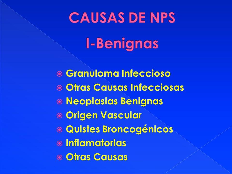 Granuloma Infeccioso Otras Causas Infecciosas Neoplasias Benignas Origen Vascular Quistes Broncogénicos Inflamatorias Otras Causas