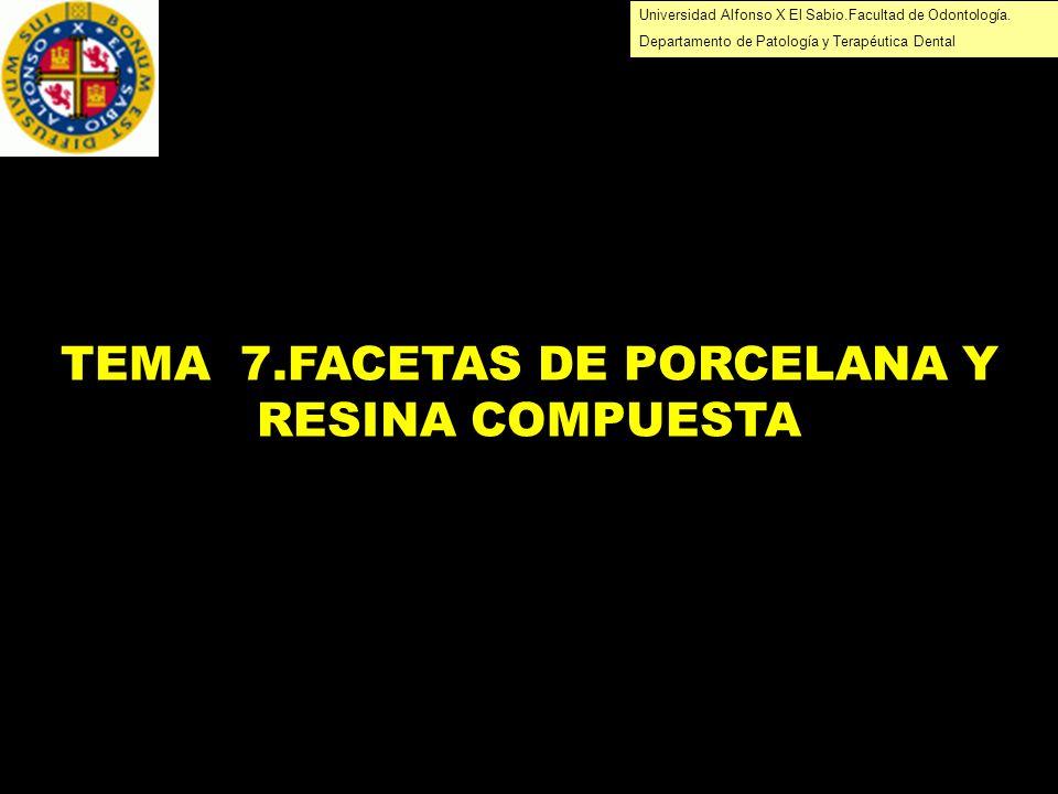 Universidad Alfonso X El Sabio.Facultad de Odontología. Departamento de Patología y Terapéutica Dental TEMA 7.FACETAS DE PORCELANA Y RESINA COMPUESTA