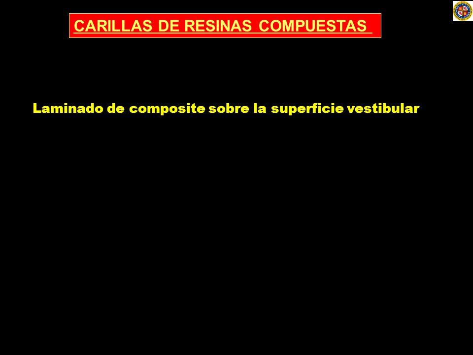 CARILLAS DE RESINAS COMPUESTAS Laminado de composite sobre la superficie vestibular