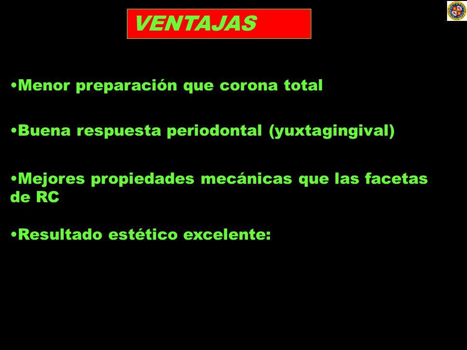 VENTAJAS Menor preparación que corona total Buena respuesta periodontal (yuxtagingival) Mejores propiedades mecánicas que las facetas de RC Resultado