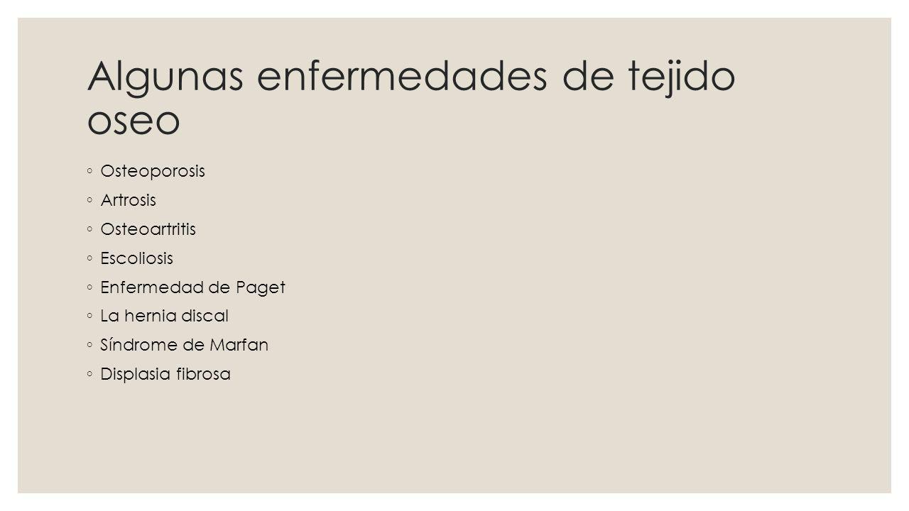 Links http://webs.uvigo.es/mmegias/guiada_a_oseo.php http://es.wikipedia.org/wiki/Tejido_%C3%B3seo http://www.agrarias.unlz.edu.ar/files/anatomia/oseo%20I.htm http://es.answers.yahoo.com/ http://www.reliablecancertherapies.com/es/glossary/term/3785 http://commons.wikimedia.org/wiki/File:Osteoclast.jpg http://escuela.med.puc.cl/paginas/cursos/segundo/histologia/HistologiaWeb/paginas /fotosBig/c95CK310_1.html http://escuela.med.puc.cl/paginas/cursos/segundo/histologia/HistologiaWeb/paginas /fotosBig/c95CK310_1.html